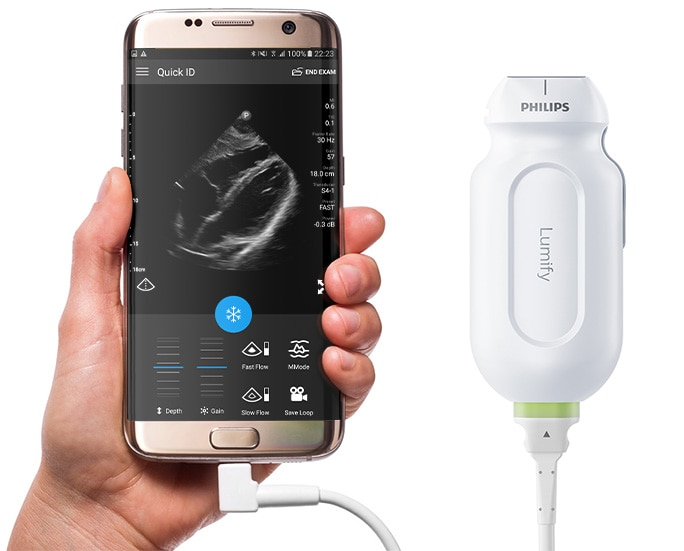 Philips Lumify