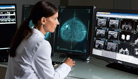 Analyzing mammography images