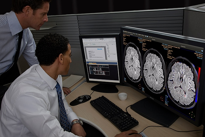 IntelliSpace Portal offers Longitudinal Brain Imaging (LoBI), an application that has been optimized for the interpretation of brain MRI scan and aims to facilitate the longitudinal evaluation of neurological disorders helping clinicians to monitor disease progression.