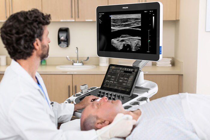 Philips Ultimate Solution for Vascular Assessment