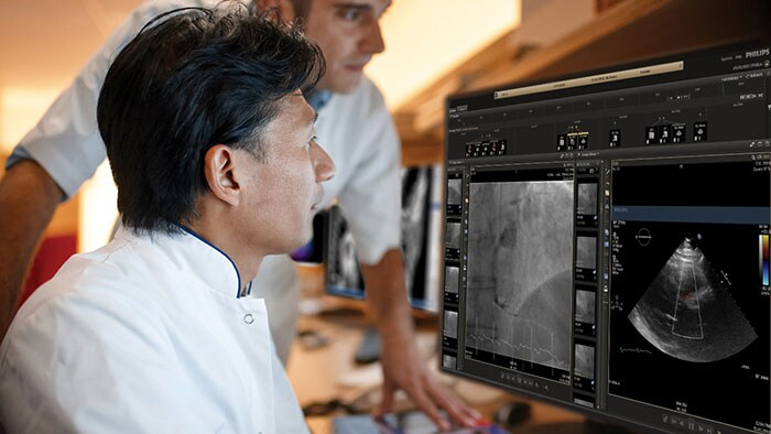 Philips introduceert innovaties in echocardiografie en enterprise informatics voor verbeterde cardiologie op ESC 2019