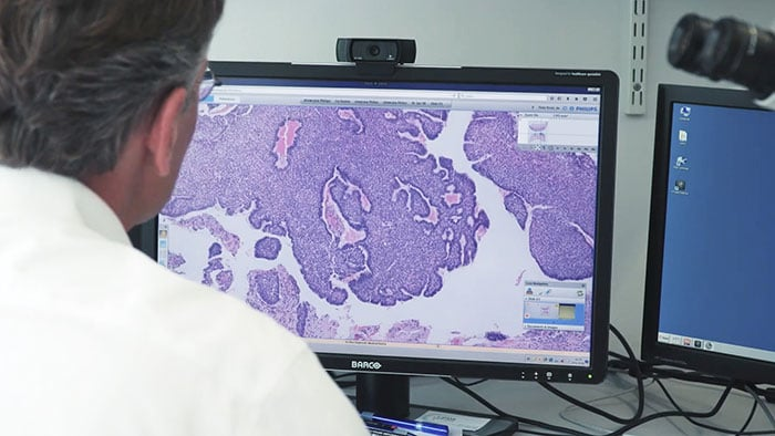 Philips en Pathologie-DNA ondertekenen raamovereenkomst digitale pathologie